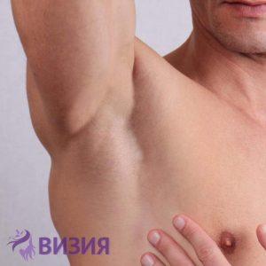 Лазерна епилация на ръце и мишници за мъже от студио за красота Визия Пловдив
